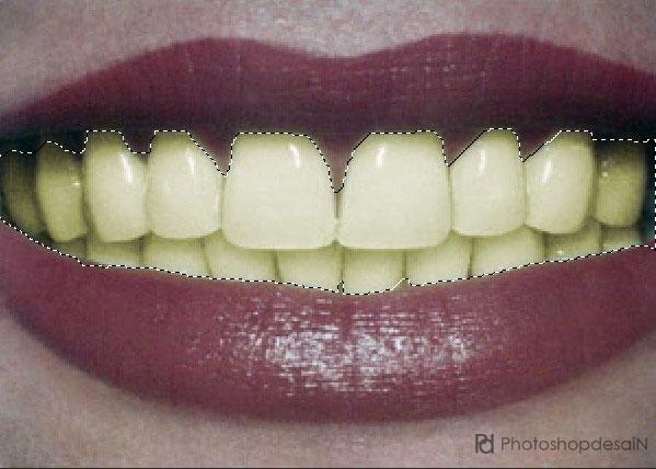 memutihkan-gigi1