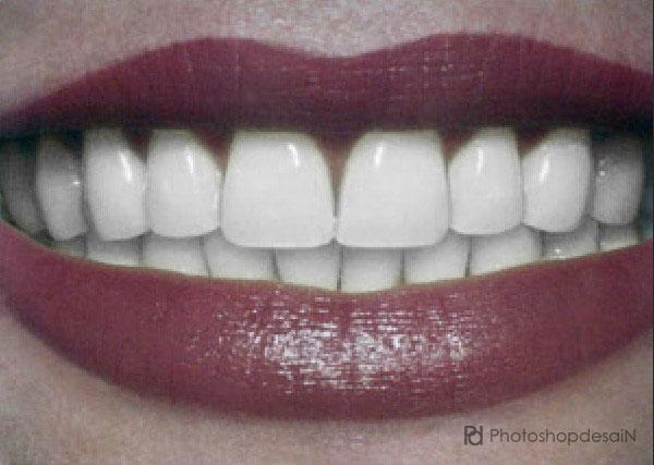 Memutihkan gigi menggunakan Photoshop